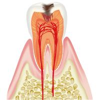 削って詰め物をする必要のある虫歯