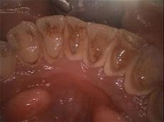 みなと歯科 口腔内カメラ 歯石除去前