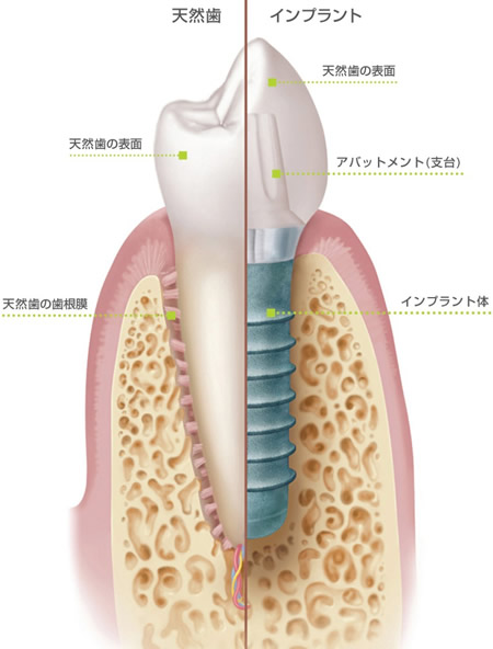 インプラント 天然歯 比較