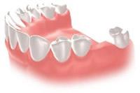 歯が1本ない状態