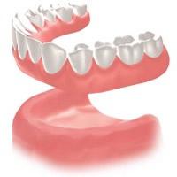 総入れ歯の様子