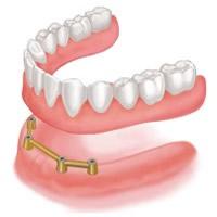 全ての歯をインプラントにする方法