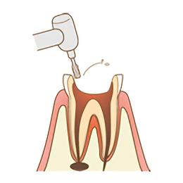 ひどいむし歯の治療の1