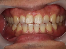 みなと歯科 ホワイトニング前