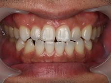 みなと歯科 ホワイトニング後